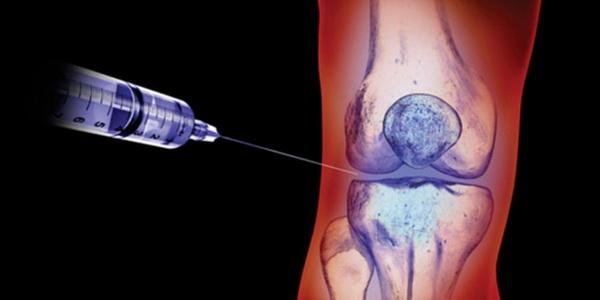 Внутрисуставные инъекции попадают точно в цель – действуют на пораженный сустав