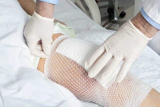 Главное – подобрать для компресса правильные гипоаллергенные ингредиенты
